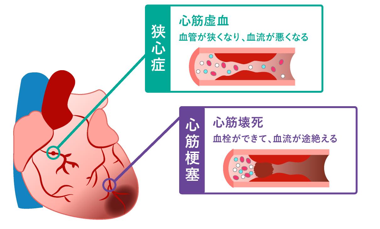 動脈硬化を起こした心血管の状態